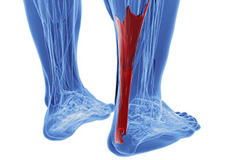 achilles tendon treatment in the Bellaire, TX 77401 area