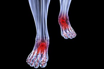 arthritic foot and ankle care treatment in the Bellaire, TX 77401 area